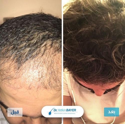 زراعة الشعر قبل وبعد بالصور والفيديو 1