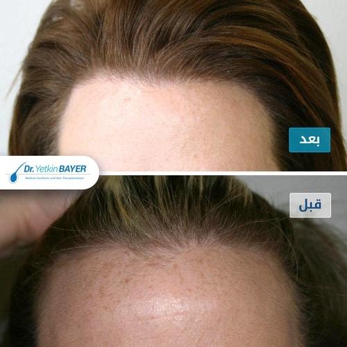 زراعة الشعر قبل وبعد بالصور والفيديو 2