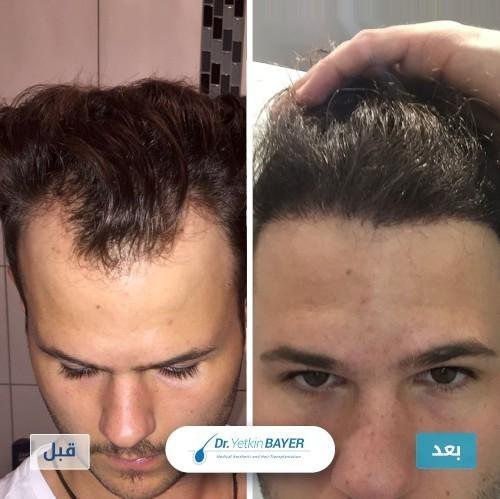 نتائج زراعة شعر الراس