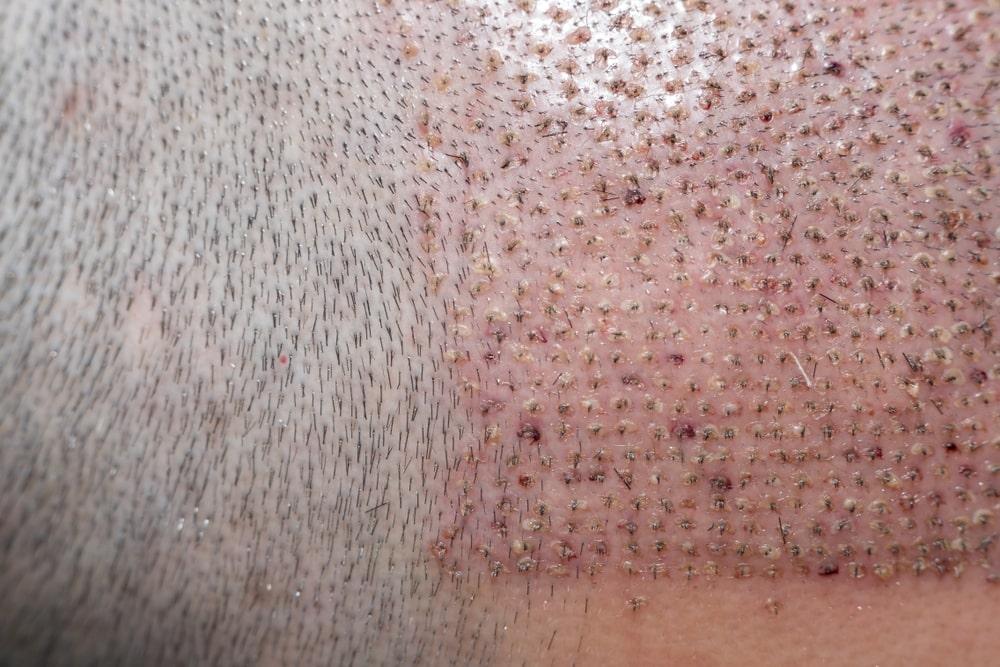 ازالة القشور بعد زراعة الشعر