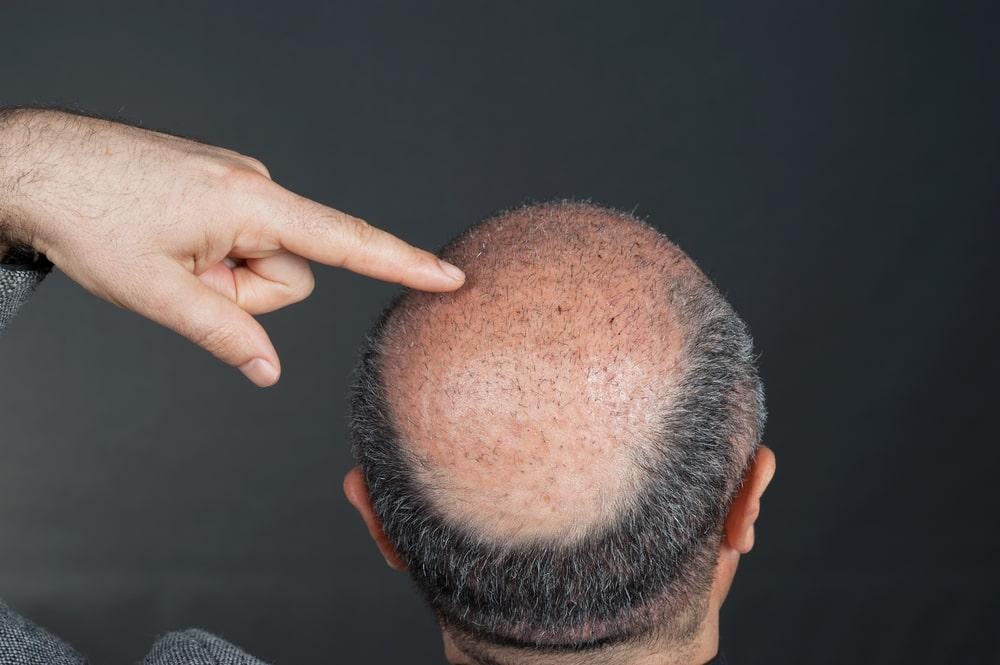 زراعة الشعر بالليزر