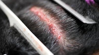زراعة الشعر للتكثيف