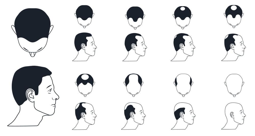 مقياس نوروود لمعرفة درجة التساقط قبل زراعة الشعر 1