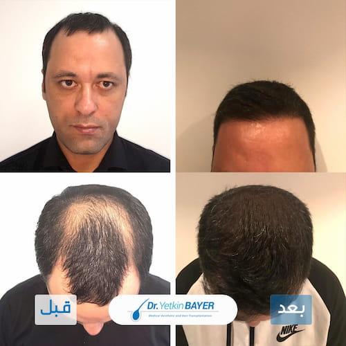 نتائج زراعة الشعر في تركيا