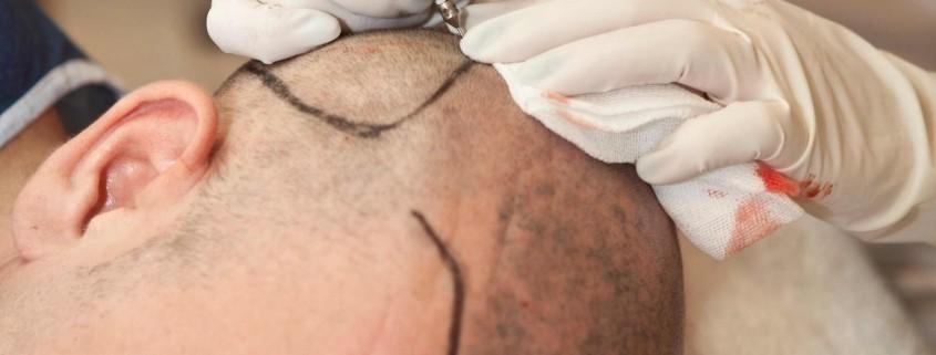 Hair Transplant for Men 1