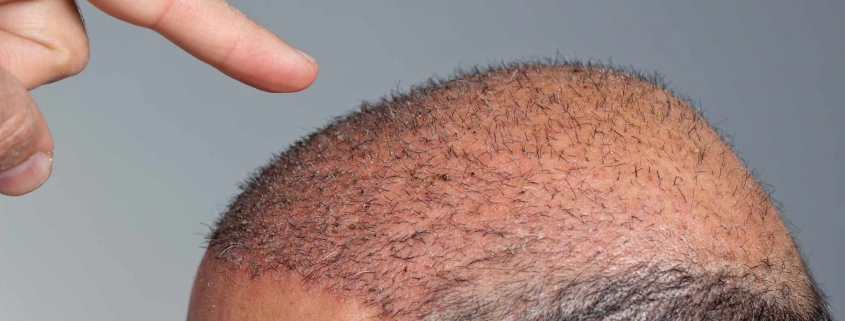 Hair Transplant without Shaving 1
