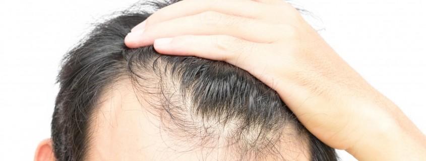 كيف تتم عملية زراعة الشعر بالتفصيل؟