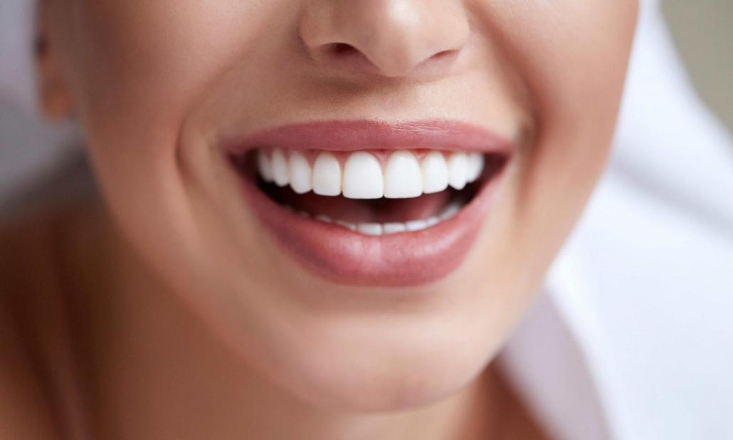اسعار تبييض الاسنان بالليزر 14