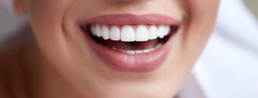 تبيض الاسنان في تركيا 2020 _ طرق تبييض الاسنان الأحدث و تكلفة تببيض الاسنان في تركيا.