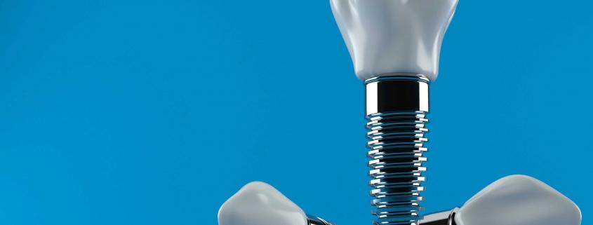 زراعة الاسنان في تركيا 2020 _ طرق زراعة الاسنان و تكلفة زراعة الاسنان في تركيا .
