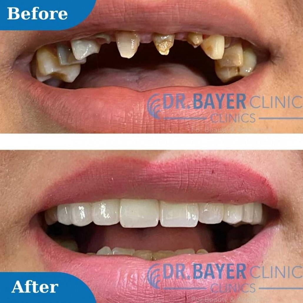 زراعة الاسنان في تركيا 2020 طرق زراعة الاسنان و تكلفة زراعة الاسنان في تركيا Yetkin Bayer