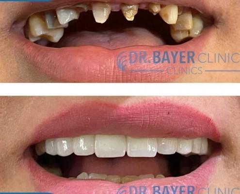 زراعة الاسنان في تركيا 2020 : طرق زراعة الاسنان و تكلفة زراعة الاسنان في تركيا . 1