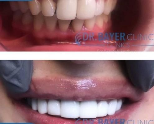 زراعة الاسنان في تركيا 2020 : طرق زراعة الاسنان و تكلفة زراعة الاسنان في تركيا . 2