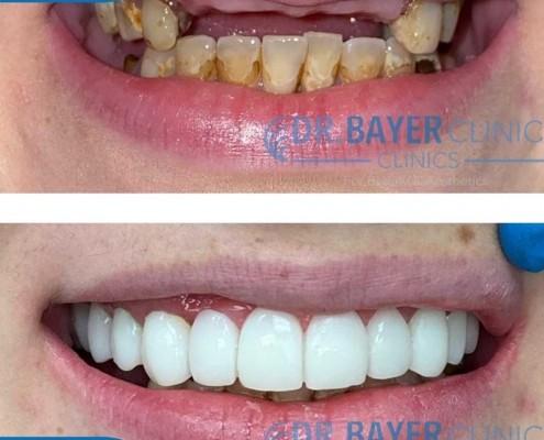 زراعة الاسنان في تركيا 2020 : طرق زراعة الاسنان و تكلفة زراعة الاسنان في تركيا . 3