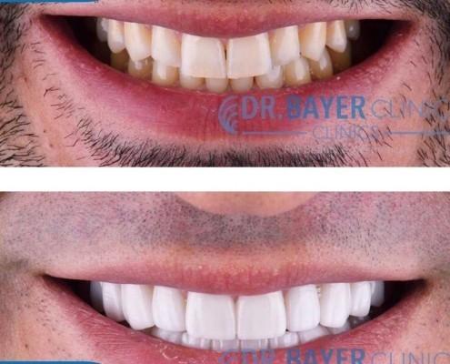 زراعة الاسنان في تركيا 2020 : طرق زراعة الاسنان و تكلفة زراعة الاسنان في تركيا . 4