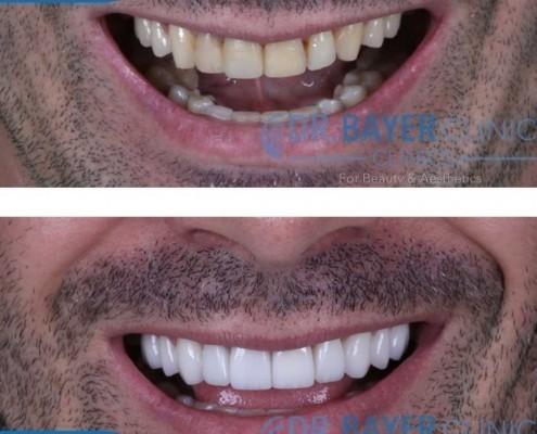 زراعة الاسنان في تركيا 2020 : طرق زراعة الاسنان و تكلفة زراعة الاسنان في تركيا . 5