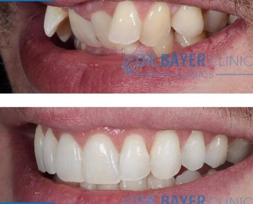 زراعة الاسنان في تركيا 2020 : طرق زراعة الاسنان و تكلفة زراعة الاسنان في تركيا . 6