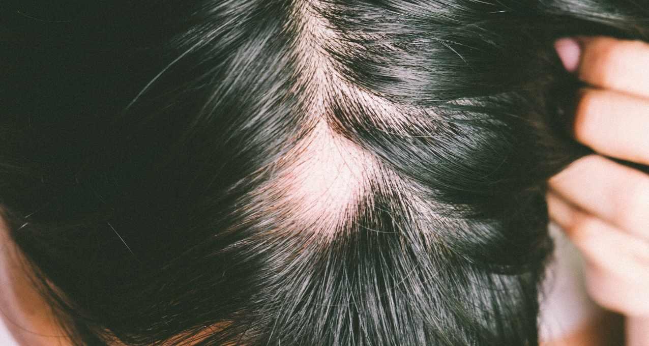 Avant la greffe de cheveux 8