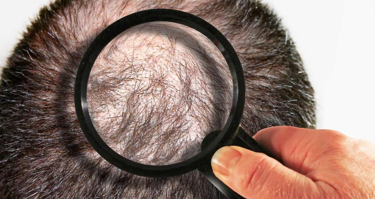 La zone donneuse : partie intégrante de la greffe de cheveux 1
