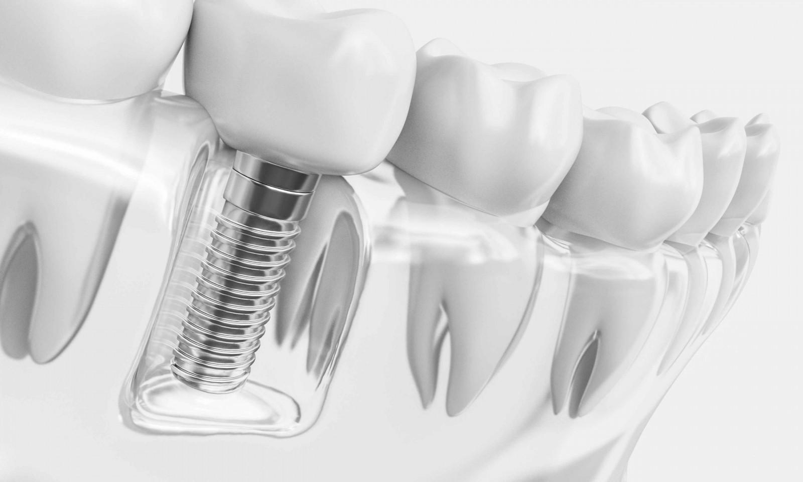 2020 أسعار زراعة الأسنان Yetkin Bayer
