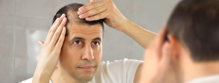 ما هو تساقط الشعر الكربي ؟