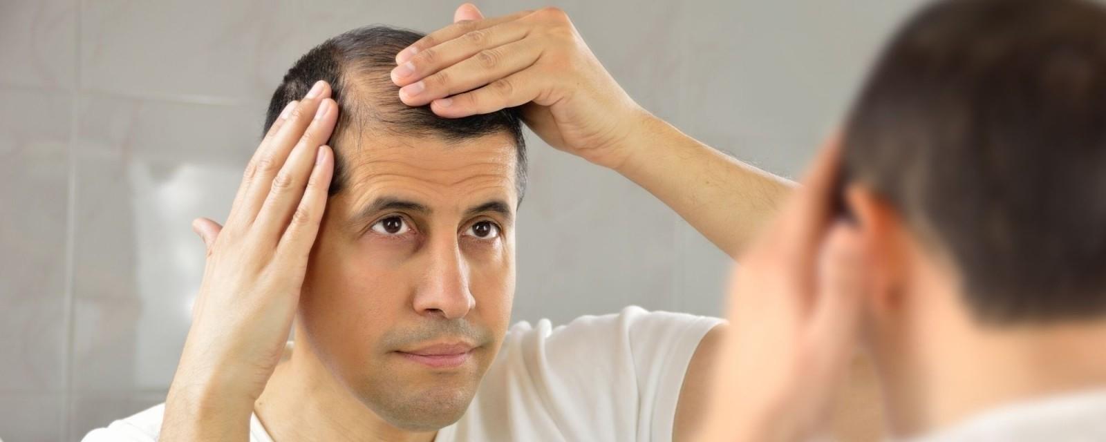 تساقط الشعر