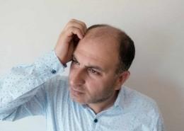 La greffe de cheveux -qu'est-ce que c'est _