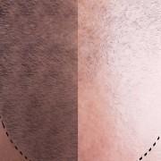 Saç Ekimi Sonuçları Neden Farklılık Gösterir? 2