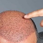 Saç Ekimi Sonrası Ağrılar Ne Kadar Sürer? 1
