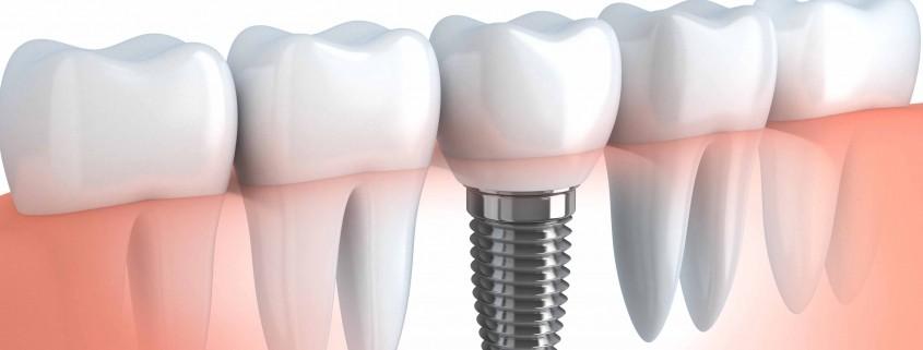 كيف تختار عيادة لزراعة الأسنان
