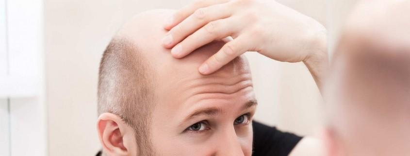 Saç Ekimi İçin Gerekli Şartlar Nelerdir?