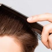saç ektirenler nelere dikkat etmelidir?