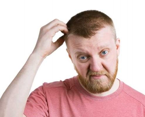 גירוד לאחר השתלת שיער 3