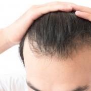 أهم أسباب تساقط الشعر