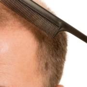 Saç Ekimi Fiyatları 1