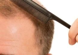 bölgesel saç ekimi