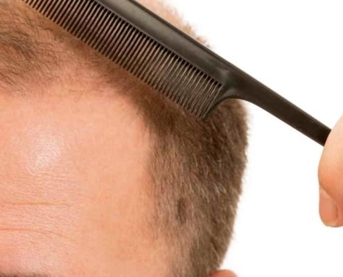 Vad är regional hair Transplantation? 1
