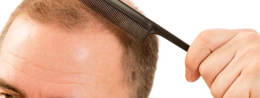 Bölgesel ( Lokal ) Saç Ekimi 1