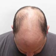 Erkek Tipi Saç Dökülmesi Nedir? 1