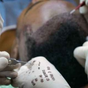 How to Choose the Best Clinic for a Hair Transplant in Turkey_