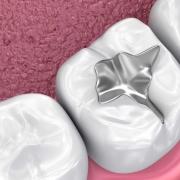 Diş Dolgusu 1