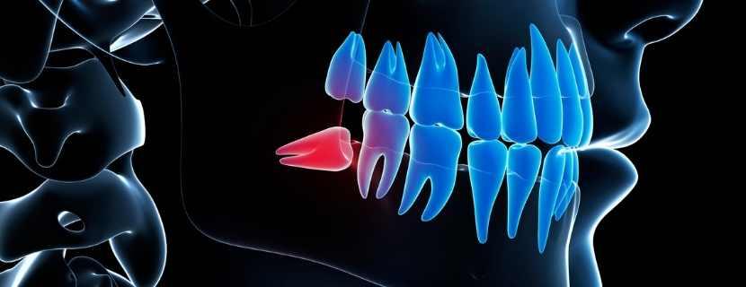 Gömük Diş Tedavisi