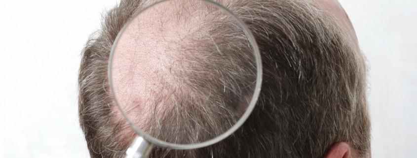 DHI Hair Transplant in Turkey