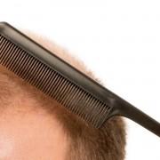 FUE Hair Transplant in Turkey