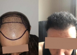 HAIR TRANSPLANT – BEFORE AND AFTER