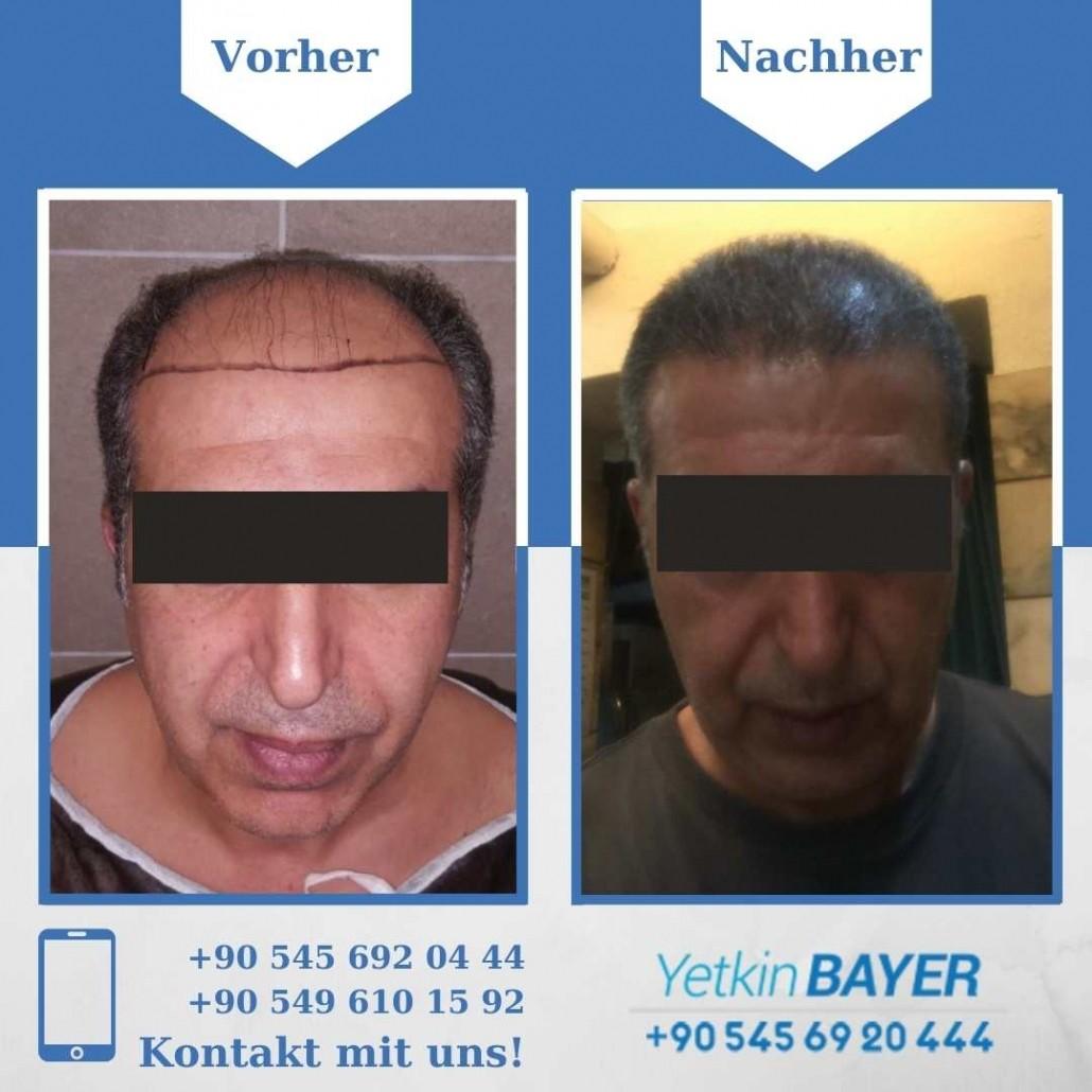 Haartransplantation Türkei Vorher Nachher Ergebnisse 27