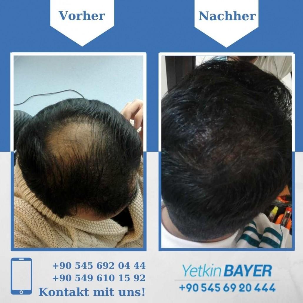 Haartransplantation Türkei Vorher Nachher Ergebnisse 35