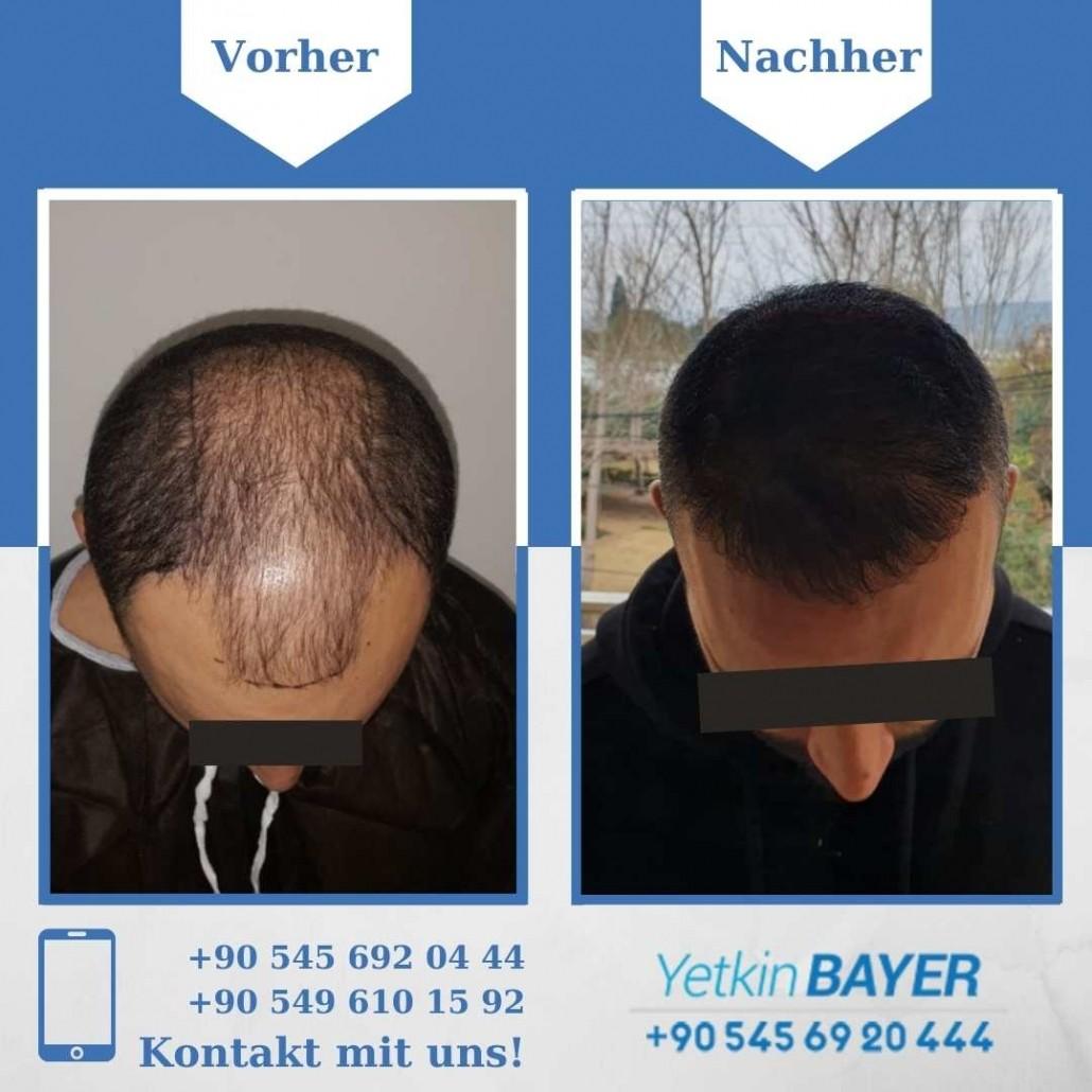 Haartransplantation Türkei Vorher Nachher Ergebnisse 1