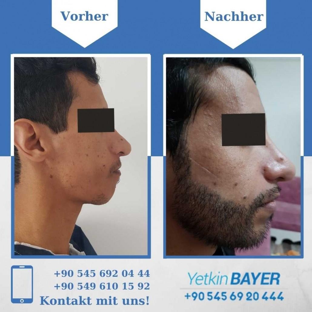 Haartransplantation Türkei Vorher Nachher Ergebnisse 25
