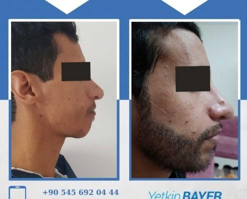 Haartransplantation: Vorher-Nachher-Bilder & Erfahrungen 11